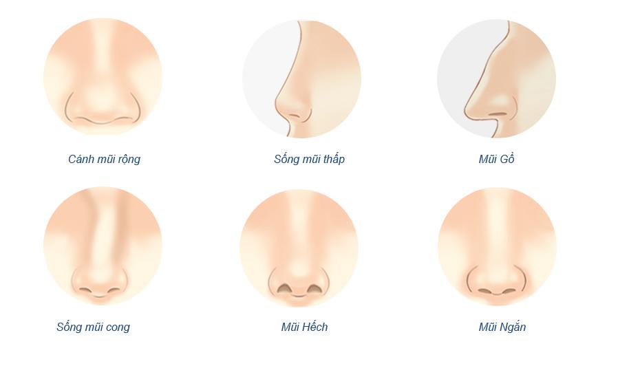 Nâng mũi cấu trúc - Chỉnh sửa cấu trúc mũi toàn diện - Mũi đẹp tự nhiên